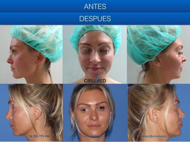 rinoplastia cerrada ajuste de la punta nasal