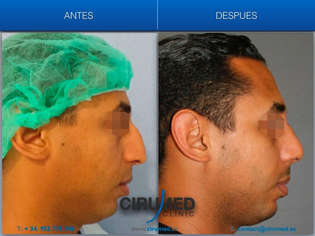 corrección de la nariz hiperproyectada