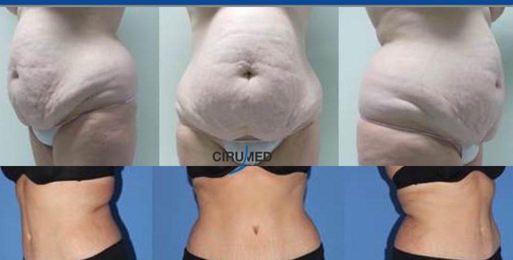 abdominoplastia-marbella