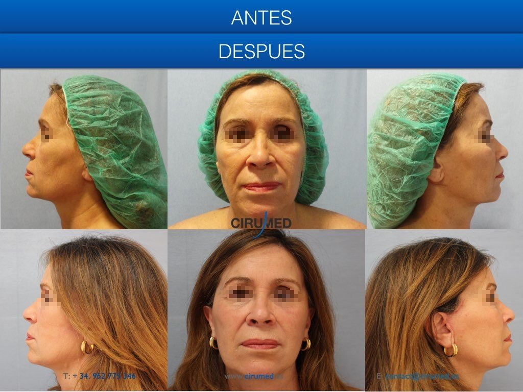 lifting facial con transferencia de grasa