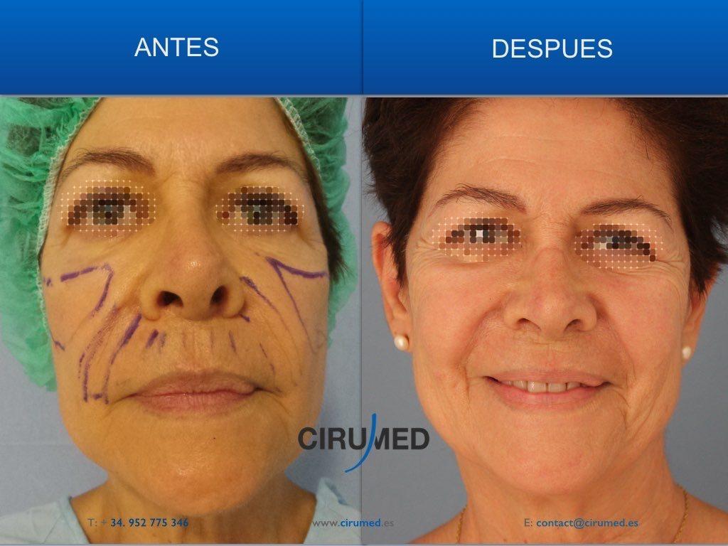 rejuvenecimiento facial con microtransferencia de grasa