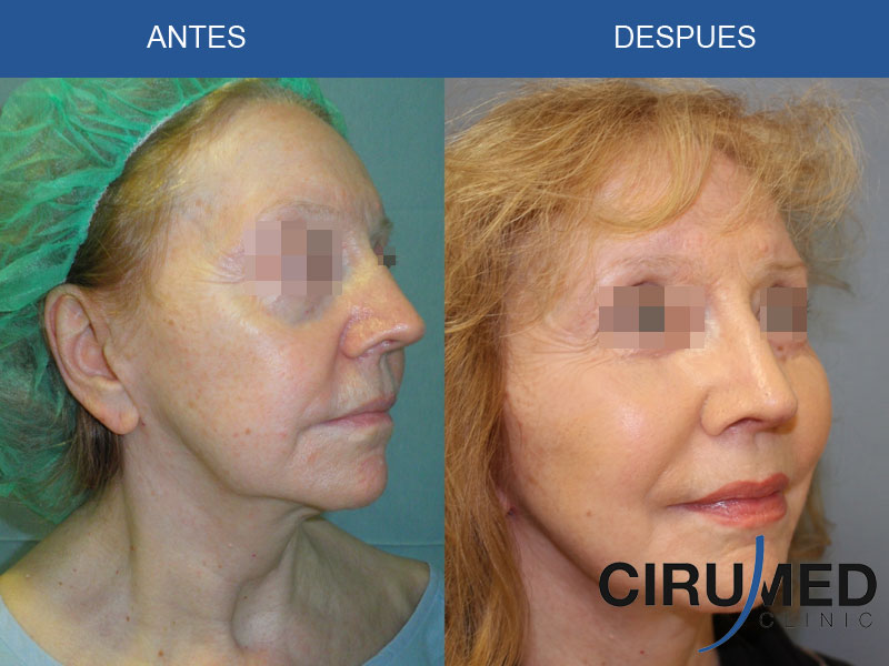 Lifting facial con micro injertos de grasa