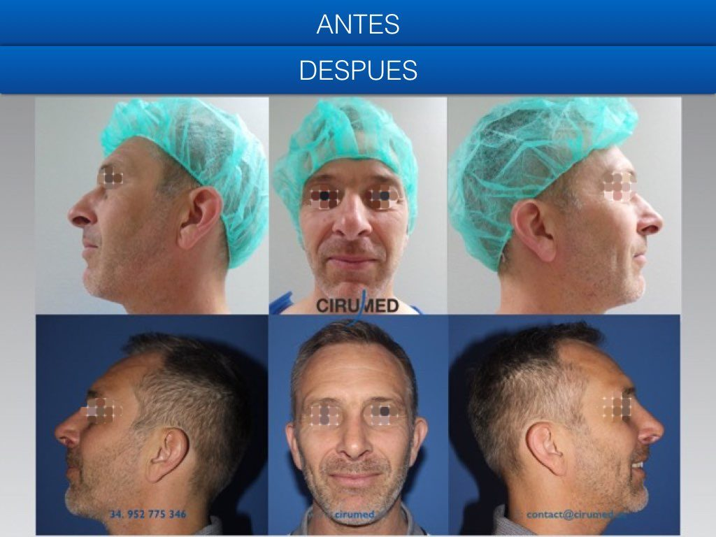 rinoplastia abierta resección de la giba nasal