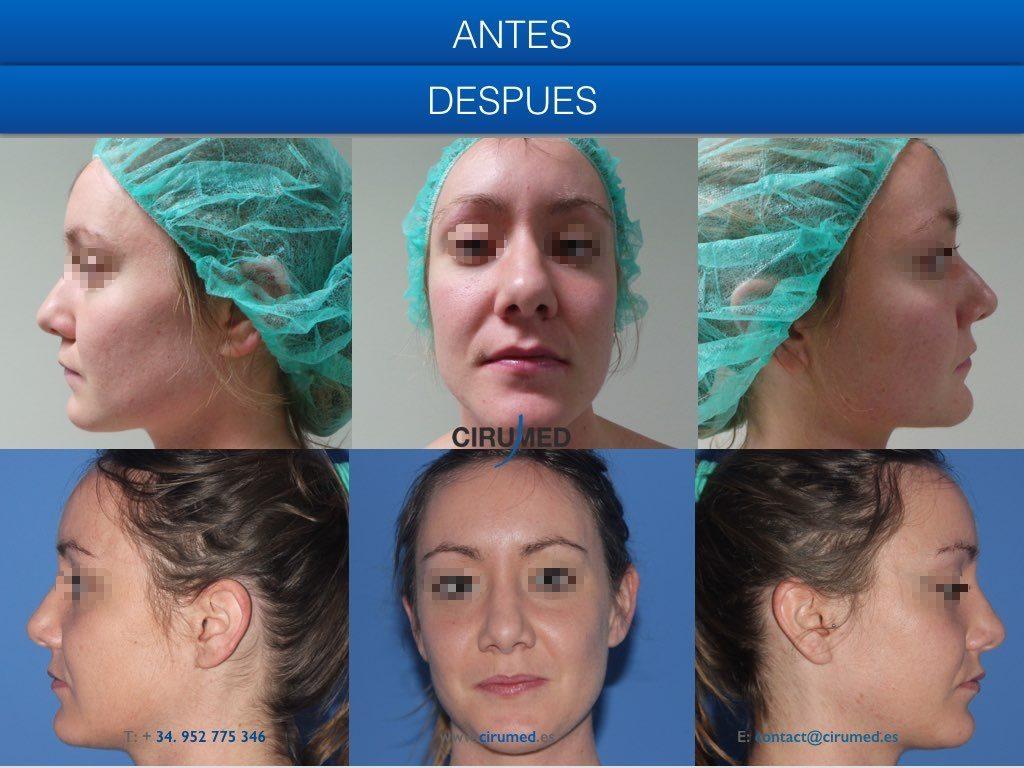 resección de giba nasal