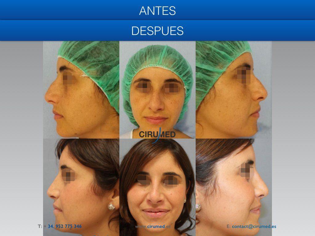 rectificación del tabique nasal