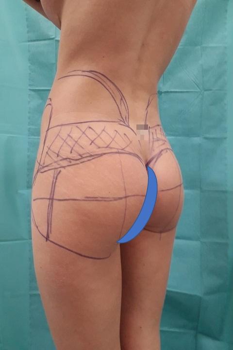 Before-Brazilian Butt Lift - Aumento de glúteos brasileño