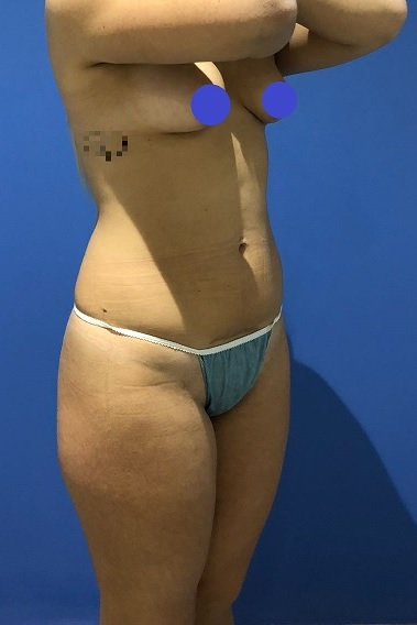Before-Bikini Makeover