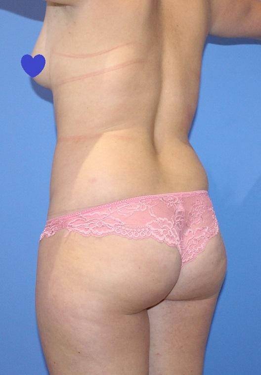 Before-Remodelación contorno corporal